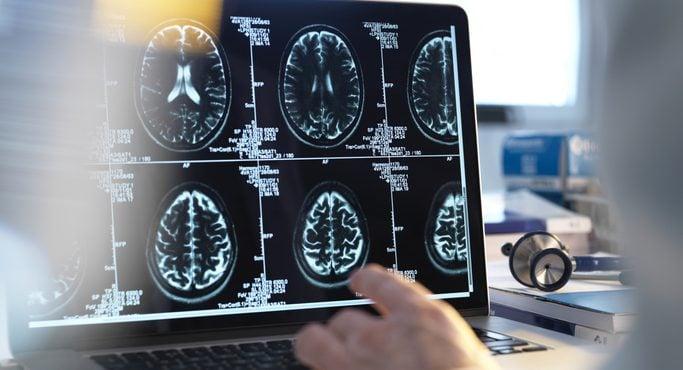 Neuro-Education : Après l'école, l'entreprise s'y met aussi !